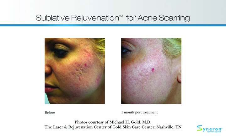 Amani Medspa Adds New Skin Rejuvenation Method, Hormone Replacement Therapy