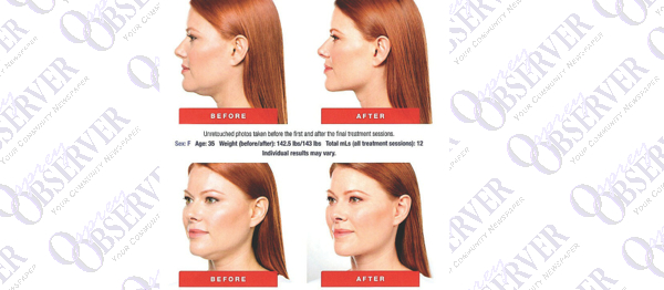 Amani Med-Spa Now Offering Kybella